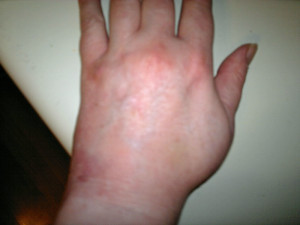swollen and bruised hand