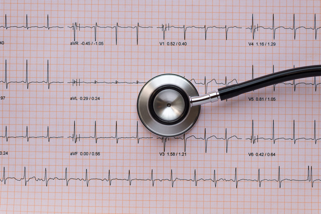 Stethscope overlying an ECG or EKG